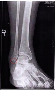 broken ankle circled